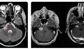 Acoustic neuroma (neurinoma)