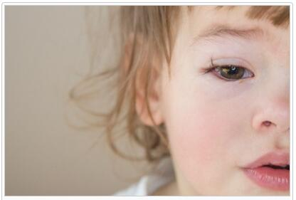 Everything about Allergic Conjunctivitis